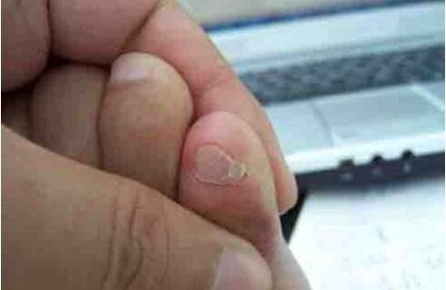小脚趾甲两瓣是怎么回事,原来有此特征的都是